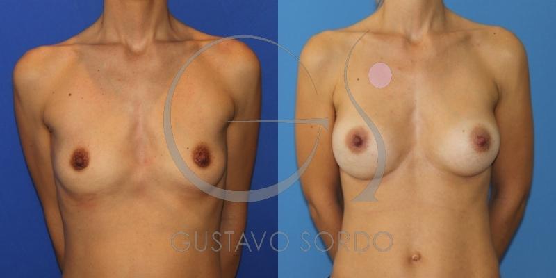 Mujer delgada sometida a un aumento de pecho con prótesis anatómicas 315cc