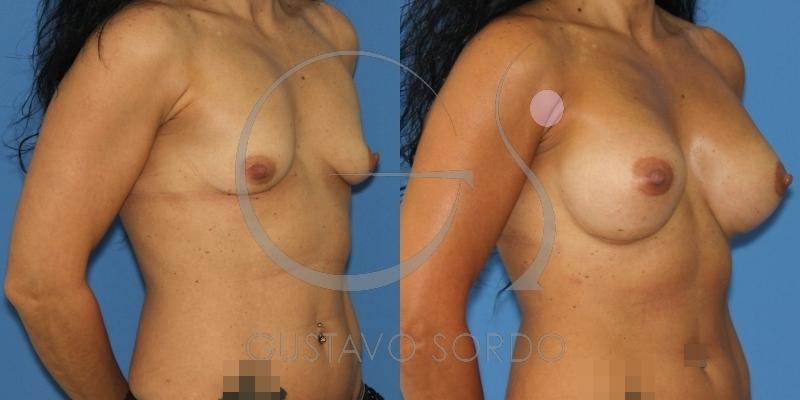 Paciente con pecho alto. Fotos del resultado del aumento de pecho
