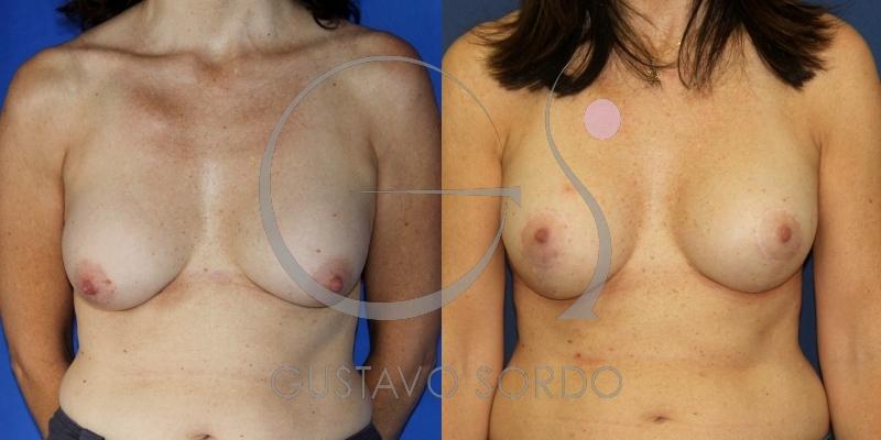 Recambio de implantes + mastopexia en T invertida [Fotos]