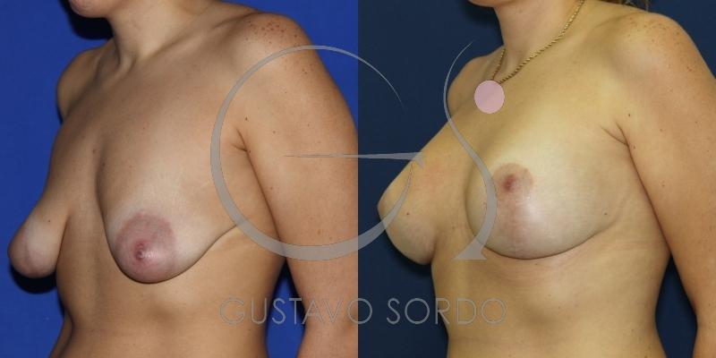 Mamas tuberosas con areola dilatada. Mastopexia + Aumento de pecho