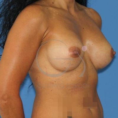 Implanty los pechos a los transexuales