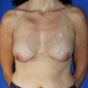Antes del recambio de implantes