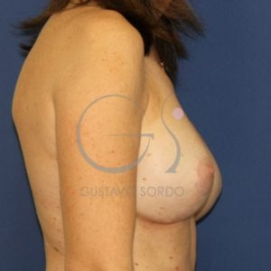 Después del recambio de implantes