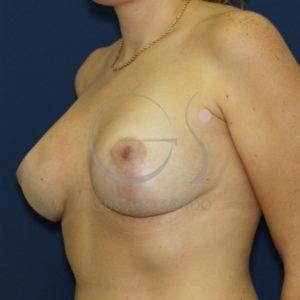 Después de la mastopexia, mamas tuberosas