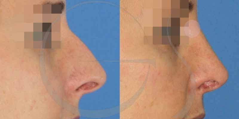 Antes y después de una rinoplastia ultrasónica [FOTOS]