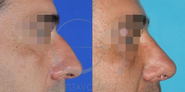 Rinoplastia practicada a un hombre de 45 años. Fotos antes y después.