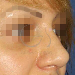 Después de rinoplastia ultrasónica