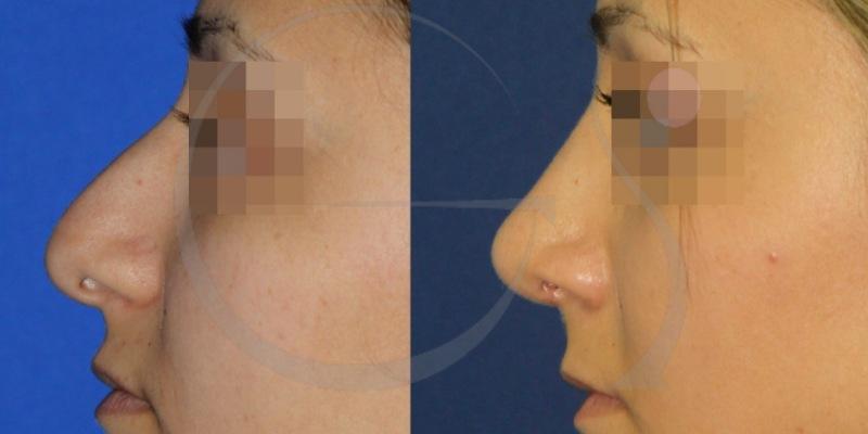 Rinoplastia para eliminar caballete. Fotos antes y después