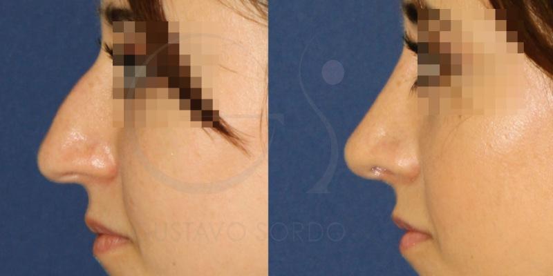 Rinoplastia de nariz con punta ancha y caida. Fotos antes y después