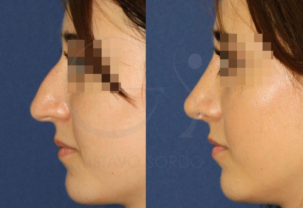 Rinoplastia nariz punta ancha y caída. Perfil