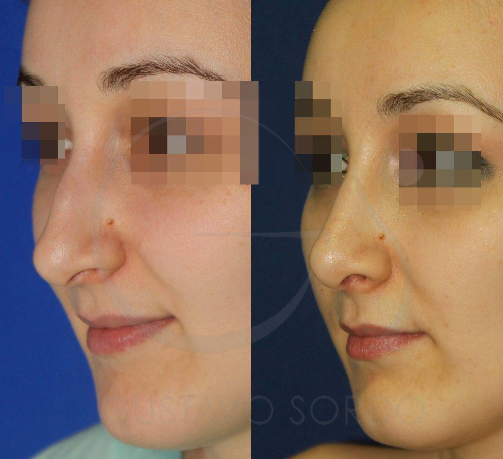Corrección nariz con punta globulosa con rinoplastia.