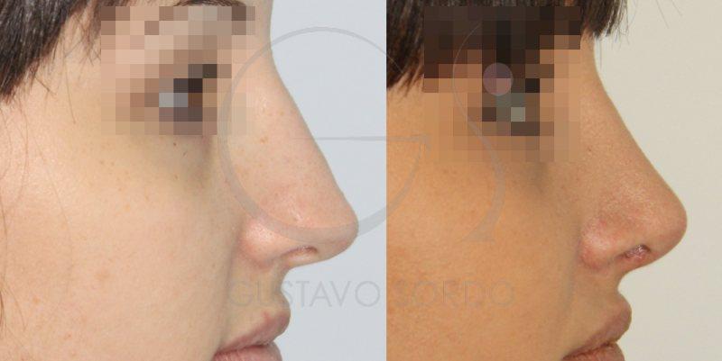 Nariz con desviación del tabique nasal corregida con rinoplastia ultrasónica