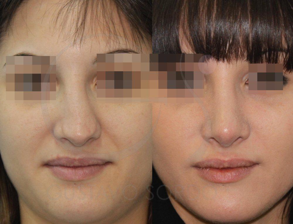 Nariz con desviación del tabique nasal corregido con rinoplastia