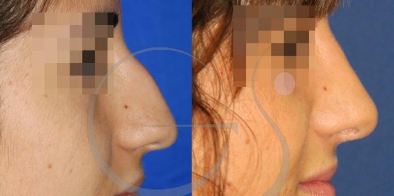 Resultado de una rinoplastia ultrasónica en nariz con caballete