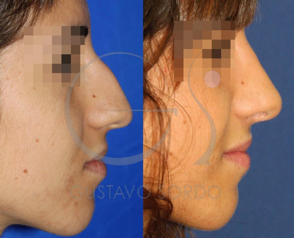 Resultado rinoplastia ultrasónica en nariz con caballete. Perfil