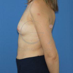 Antes del aumento de mamas.