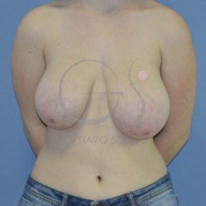 Antes hipertrofia mamaria- Frente