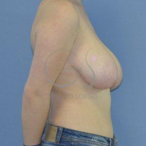Antes hipertrofia mamaria- Perfil