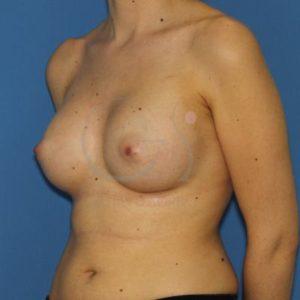Después del aumento de mamas. 280cc.