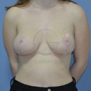 Después hipertrofia mamaria- Frente