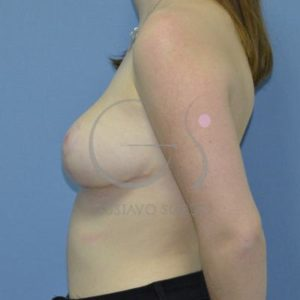 Después hipertrofia mamaria- Perfil Izquierdo