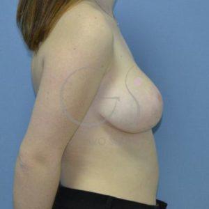 Después hipertrofia mamaria- Perfil