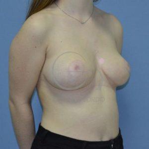 Después hipertrofia mamaria- Semiperfil
