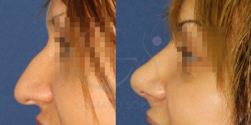 Nariz con tabique pronunciado. Fotos antes y después de la rinoplastia