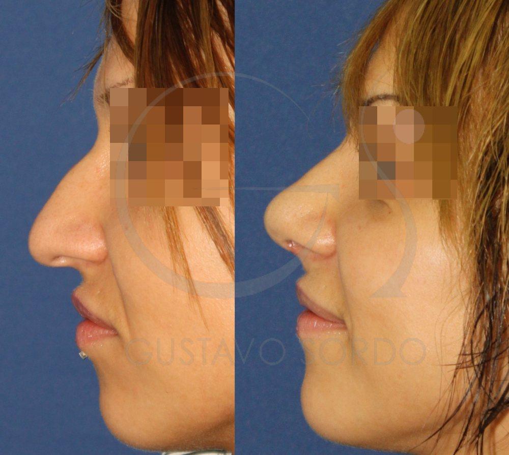 Nariz con tabique pronunciado. Antes y después de la rinoplastia ultrasónica. Perfil