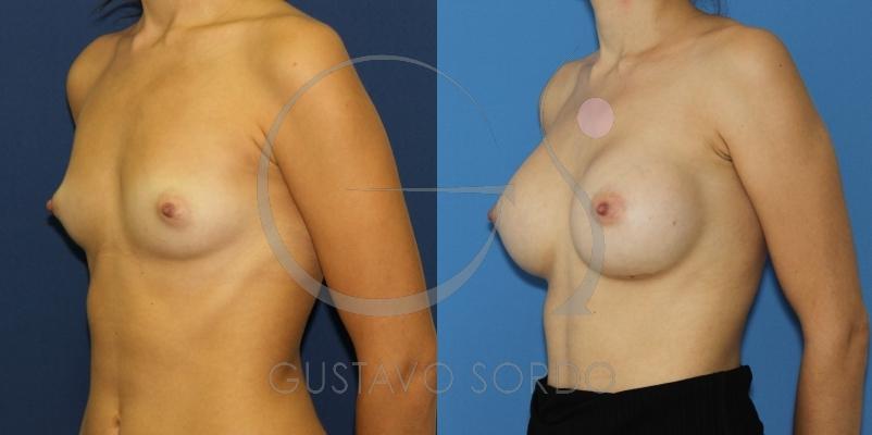 Aumento de pecho con prótesis redondas de 350cc. Fotos antes y después.