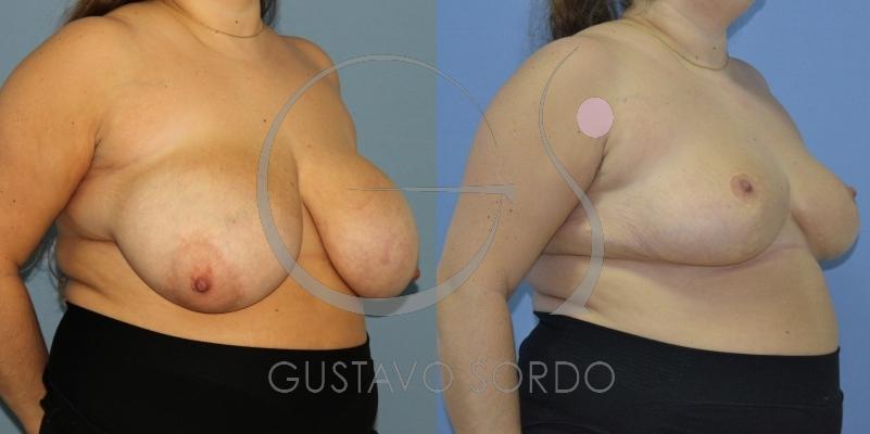 Reducción mamaria en paciente con gigantomastia bilateral. [FOTOS]