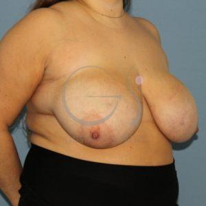 Antes de la reducción mamaria.