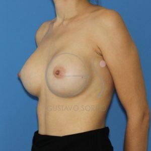 Después del aumento de pecho con prótesis redondas,