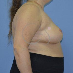 Después de la reducción mamaria.
