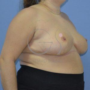 Después de la reducción mamaria