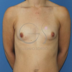 hipoplasia mamaria. Antes del aumento de pecho