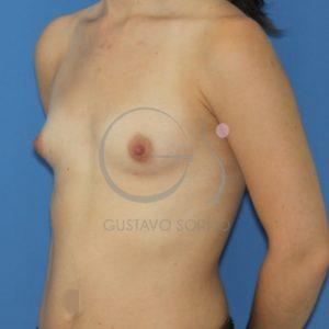 Hipoplasia mamaria.Antes del aumento de pecho