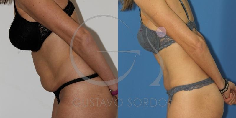 Abdominoplastia con liposucción de flancos después de dos embarazos