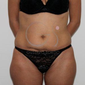 Antes de la abdominoplastia con liposucción.