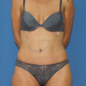 Después de la abdominoplastia con liposucción.