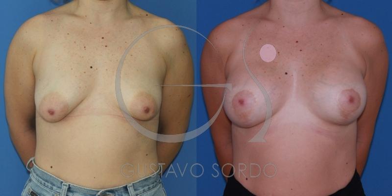 Mamas tuberosas de grado IV corregidas con mastopexia de aumento [FOTOS]