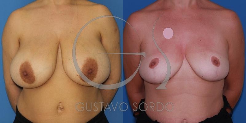 Gigantomastia resuelta con una reducción de mamas.