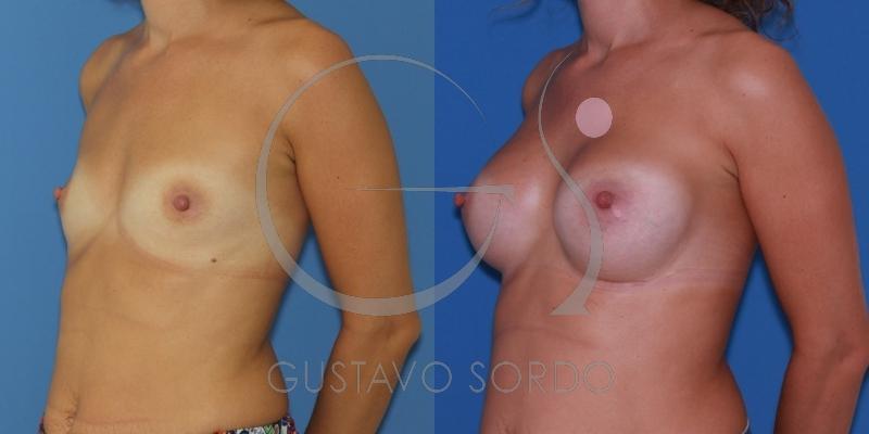 Aumento de mamas a través del surco mamario. Posición subpectoral dual plane I