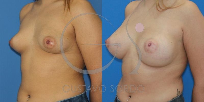 Caso de mamas tuberosas grado II resuelto con aumento de pecho