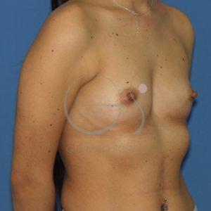 Paciente con esternón hundido antes del aumento de mamas