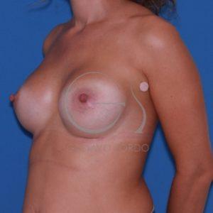 Después del aumento de mamas.
