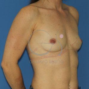 Antes del implante redondo