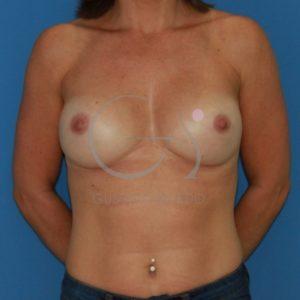 Después del implante redondo