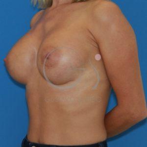 Después de poner los Implantes redondos 375cc