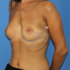 Antes de poner los Implantes redondos